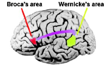 Áreas de Broca y Wernicke