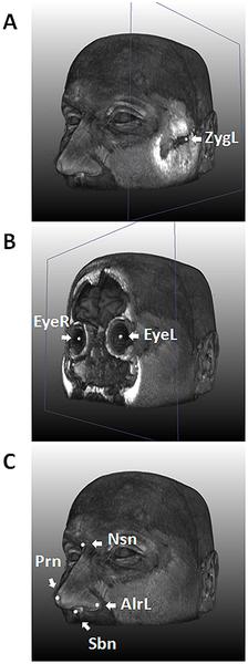 Nueve puntos de referencia han sido extraídos a través de una herramienta de registro de Imágenes por Resonancia Magnética en 3D /www.plosgenetics.org